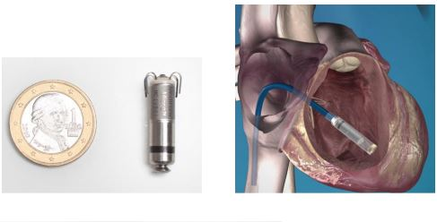 Heart inplant